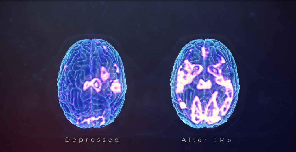 Brain Before and After TMS Treatment